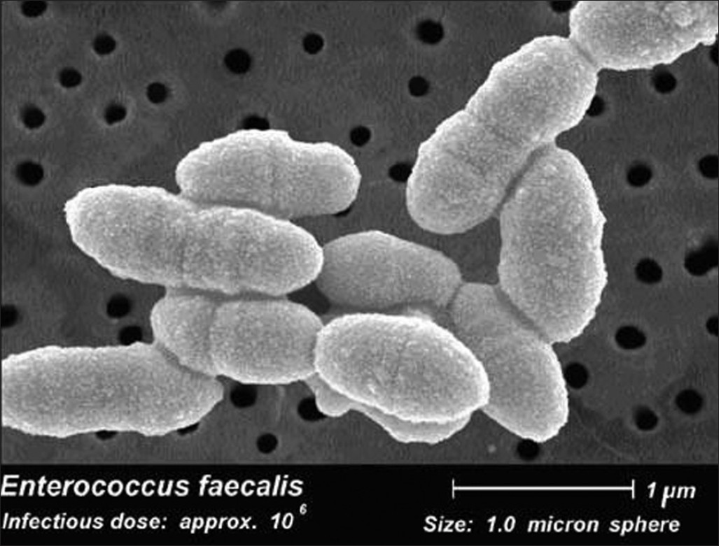 entercoococcus faecalis Nosocomial infection essays and research papers | examplesessaytodaybiz studymode  entercoococcus faecalis by.