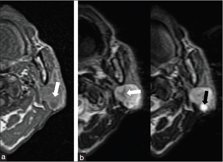 pleomorphic adenoma radiology)