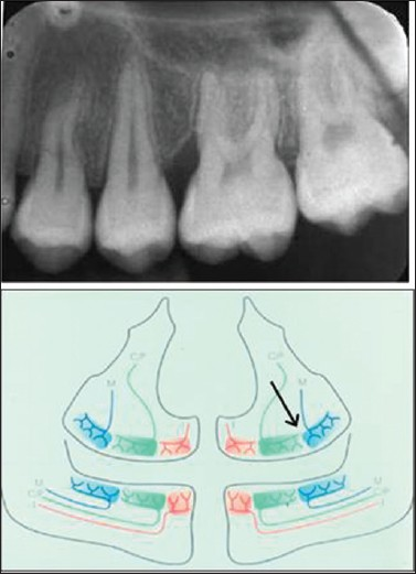 Figure 3: Dental film from a girl aged 14 (group 1 patient) with oblique alveolar bone level mesially to the left upper first molar. Other bone levels are normal. In the inserted diagram, the arrow indicates the borderline areas between jaw segments innervated differently
