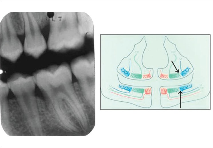 Figure 4: A dental film from a boy aged 15 (group 1 patient) showing oblique alveolar bone contours mesially to the left upper and lower first molars. Other bone levels are normal. In the inserted diagram the arrow indicates the borderline areas between jaw segments innervated differently