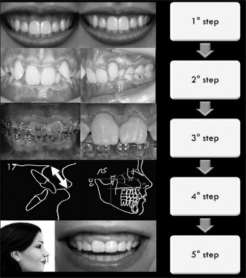 Figure 1: Schematic representation of the alterations to be observed. Step 1 - Analysis of gingival exposure; Step 2 - Occlusion analysis: overbite presence; Step 3 - Gingival analysis: hyperplasic and passive eruption; Step 4 - Cephalometric analysis: labial relationship (Ricketts analysis-factors 17 and 18); bone structure (Ricketts analysis-factors 24 and 25); Step 5 - Muscle analysis - Lip length. (Cortesy of Marcelo Tomás de Oliveira)