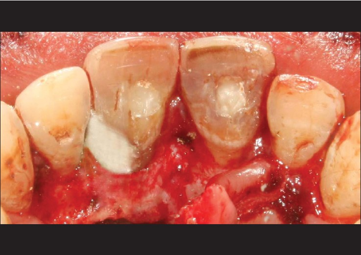 Figure 7: Invasive cervical resorption defect on the distopalatal aspect of 21 was debrided thoroughly and restored with white mineral trioxide aggregate