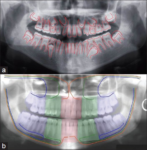 Figure 2: Panoramic radiographs with marking of tissue components, not visible radiographically. Panoramic radiograph of a girl 10 years old. Red line drawings indicate areas where ectodermal mucosa is important for tooth development. The red lines mark the site of the inner enamel epithelium between enamel and dentin and the epithelial lining of Malassez along the root contour. Furthermore, the lines indicate the ectoderm of the crown follicle in non-erupted teeth, b: Panoramic radiograph of an adult female. The figure demonstrates the fields in the jaws with different innervation and different ectomesenchyme. In the maxilla the red area marks innervations and ectomesenchyme in the fronto-nasal field, the green area marks the canine/premolar fi eld (maxillary neural crest cells) and the blue area marks the molar fi eld. In the mandible, the red area marks innervation and ectomesenchyme to the incisors, the green fi eld to the canine/premolars and the blue field to the molars