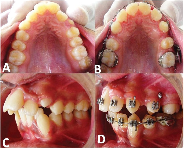 Figure 8: Pre-distalization (a) and Post-distalization occlusal views (b),