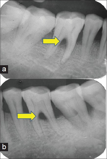 Management Of Periodontal Furcation Defects Employing