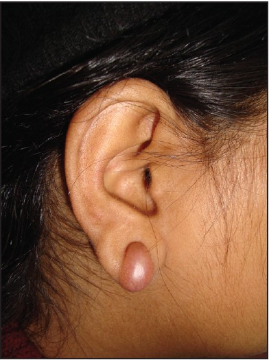 Figure 1 Pre Operative Patient S Photograph Showing Ear Keloid