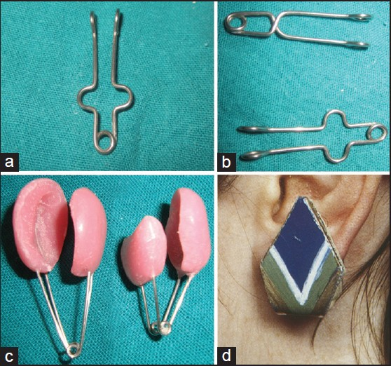 Figure 6 A U Loop Pressure Clip For Ear Lobe Keloid B Other Design Of C On Self Fabricated The