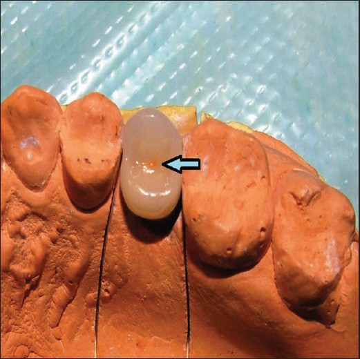 Figure 1: The position of screw access was marked by ceramic stain on the occlusal surface of the premolar