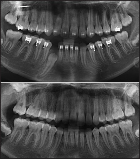 Figure 2: Displays an impacted right mandibular canine tooth. Tooth root flexion of the apical 1/3 is evident on the mandibular canines and premolars