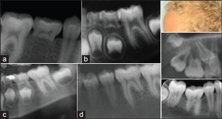 Figure 10: Symptoms and signs of importance for avoiding resorption during orthodontic treatment. (a and b) exemplify that it is important to diagnose abnormal resorption patterns in the primary dentition, often leading to resorption in the permanent dentition. Radiographs (c and d) demonstrate how the first molar with normal root length (c) can change to a short distal root (d) without previous orthodontic treatment. A condition like this and conditions shown in Figure 6 are morphological characteristics that should be a warning sign for orthodontists, who are planning treatment with fixed appliance. The three figures to the right are shown with permission from orthodontist, Izabella Vest Hansen. The figures demonstrate a patient with ectodermal signs in hair, skin, and molars, which should be diagnosed before applying orthodontic treatment. The maxillary first molar roots have nearly completely resorbed without orthodontic treatment. The mandibular first molar is secondarily retained, indicating an abnormal functioning of the periodontal membrane