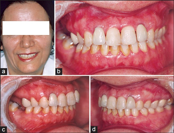 Figure 3: Posttreatment facial and intra-oral photographs (a-d)