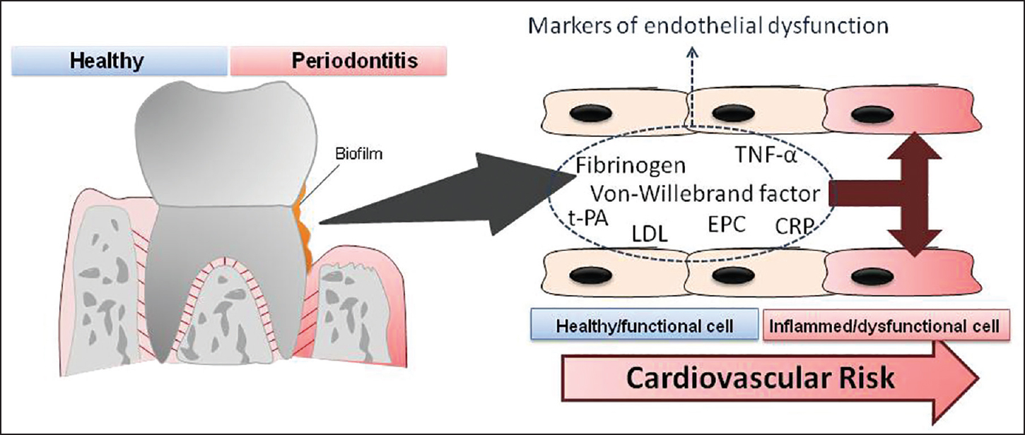 Figure 2: Role of periodontitis and systemic inflammation. Periodontitis may generate endothelial dysfunction, which in turn is the first step of cardiovascular diseases. Although the exact mechanisms are not yet defined, some serum biomarkers are identified and may be used as a sign of the disease